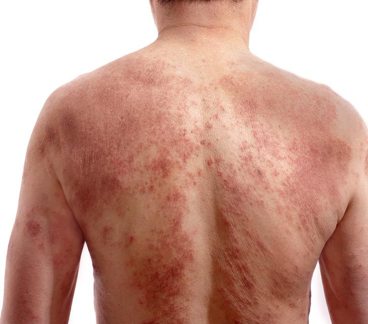 Фото №1 - Почему болячки, когда заживают, чешутся?
