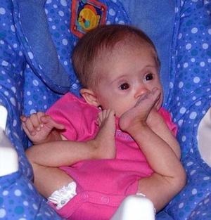 Фото №3 - Девочка с лейкемией и синдромом Дауна стала моделью: фото