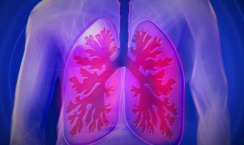 Фото №1 - Как понять, что у вас пневмония: доктор Комаровский назвал шесть тревожных симптомов
