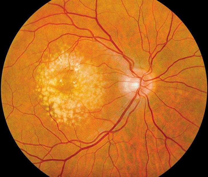 Фото №1 - Двум пожилым пациентам вернули зрение