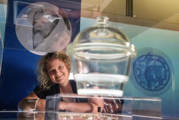 Луиза Браун, первый в мире ребенок из пробирки
