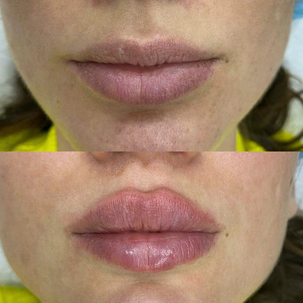 Фото №3 - Результат поражает: реальные фото женщин до и после увеличения губ