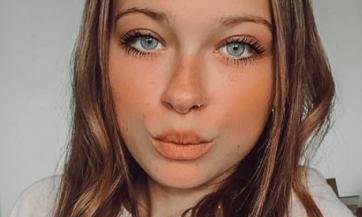 Девушка сэкономила на увеличении губ и сильно об этом пожалела