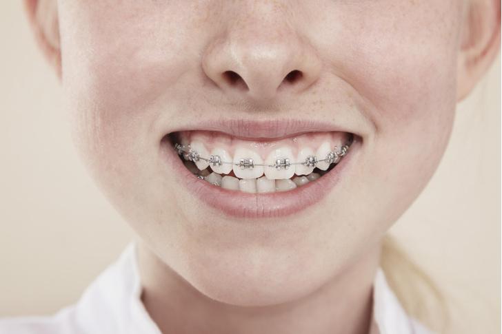 брекеты, прикус, как исправить прикус, как брекеты меняют внешность, кривые зубы, как исправить, стоматолог