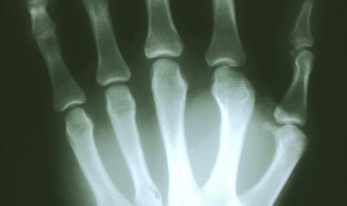 Фото №1 - Прокуратура нашла пять из 38 неработающих рентгенаппаратов в поликлиниках
