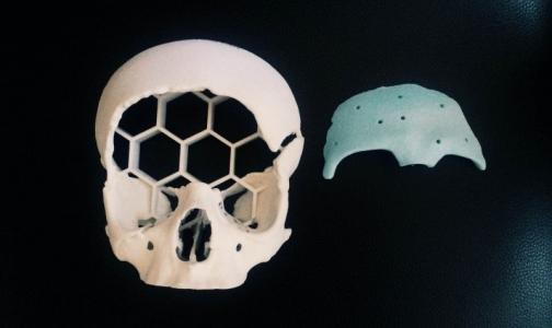 Фото №1 - В Петербурге подростку создали новый череп с помощью трансплантата