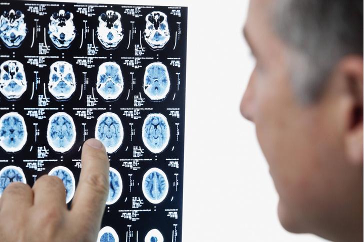 Фото №1 - Мозг женщин выглядит моложе, чем мужской