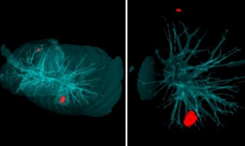 Фото №1 - В петербургском Политехе научили искусственный интеллект выявлять рак легких за 20 секунд