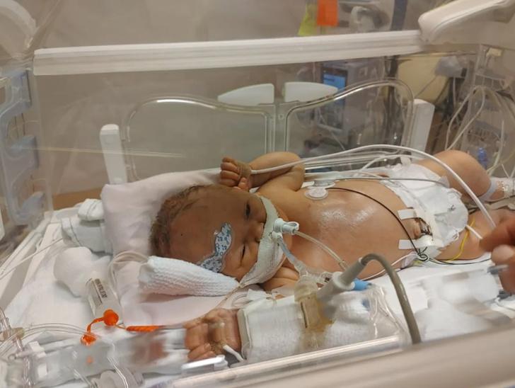 Фото №4 - Сюрприз: женщина 8 месяцев не знала о беременности и внезапно родила
