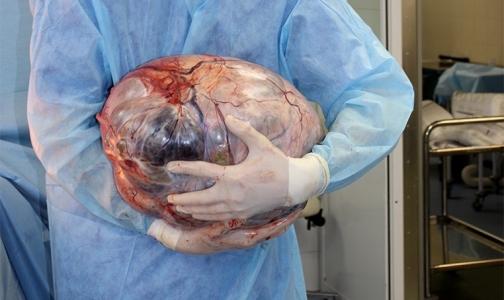Фото №1 - Причиной лишнего веса москвички оказалась 21-килограммовая опухоль