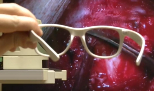 Фото №1 - Врачи провели первую в России операцию с использованием 3D-камеры