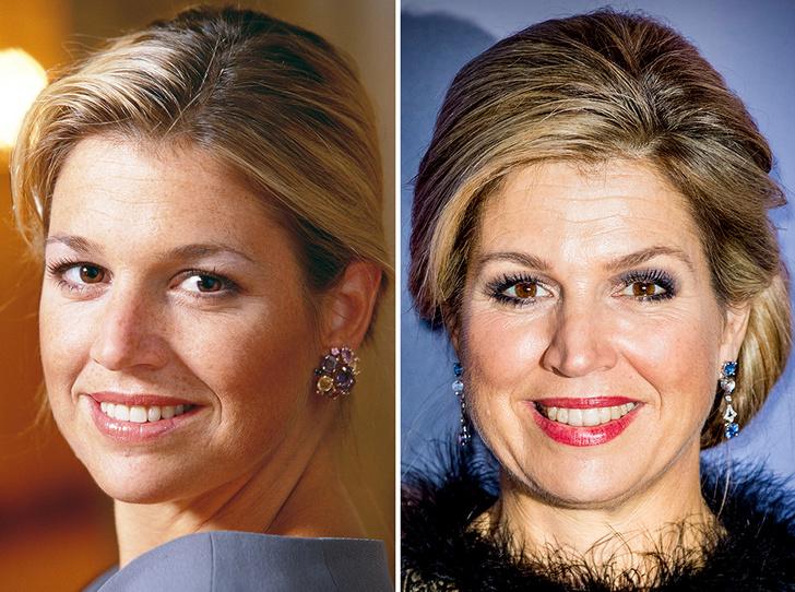 Фото №9 - Королевы и пластика: как меняли внешность коронованные особы