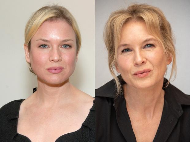 Рене Зеллвегер до и после пластики фото в молодости и сейчас 2020