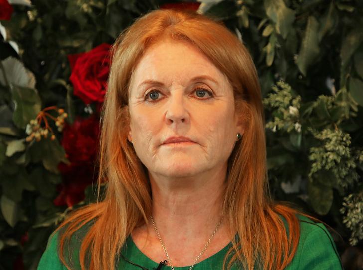 Фото №1 - Герцогиня Йоркская рассказала о пластических операциях