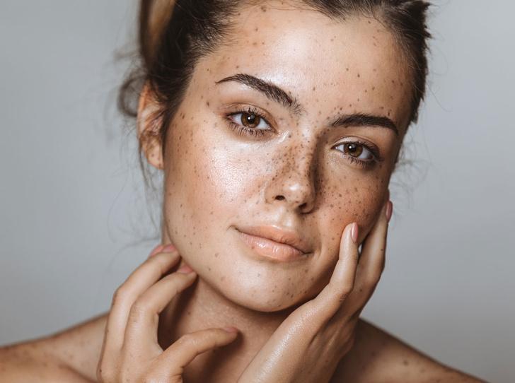 Фото №1 - Как избавиться от пигментных пятен на лице