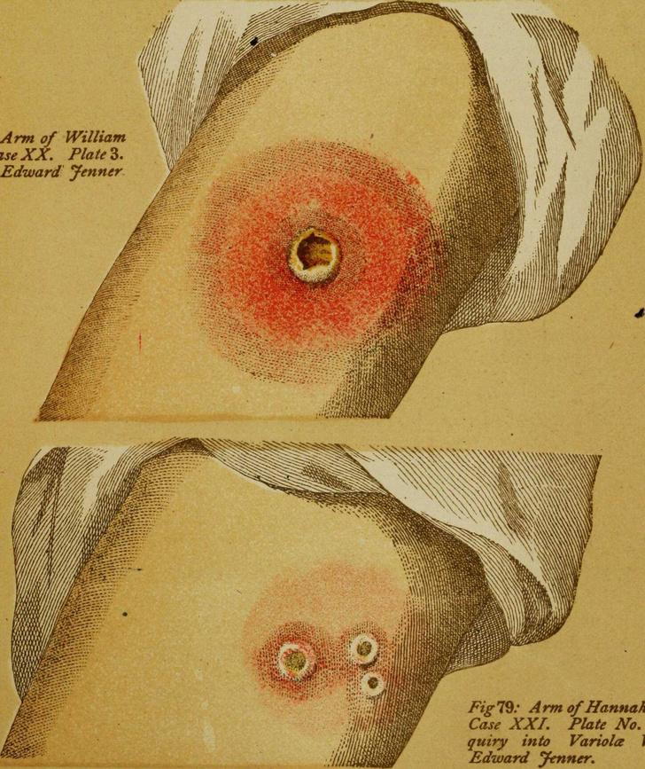 Фото №3 - «Рога и хвост не вырастут»: как в России пропагандировали вакцинацию 200 лет назад