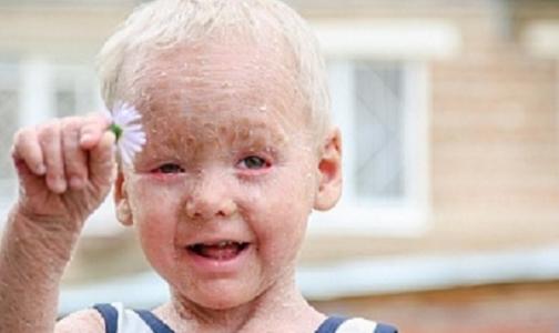 Фото №1 - Помогите трехлетнему Диме с ихтиозом почувствовать солнце