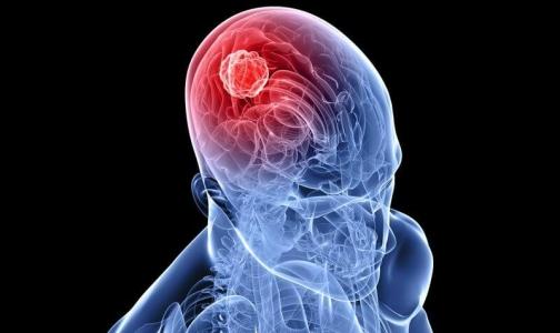 Фото №1 - Редкая операция сохранила петербурженке с опухолью мозга способность двигаться и говорить