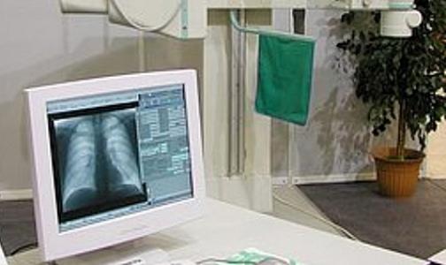 Фото №1 - 12 больных туберкулезом, уклоняющихся от лечения, хотят госпитализировать принудительно