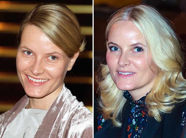 Фото №10 - Королевы и пластика: как меняли внешность коронованные особы