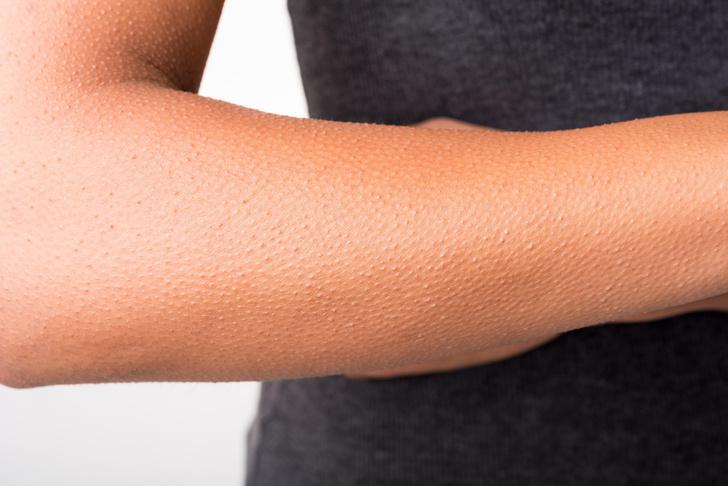 Фото №1 - Почему мы покрываемся «гусиной кожей»?