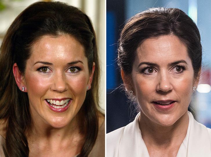 Фото №5 - Королевы и пластика: как меняли внешность коронованные особы