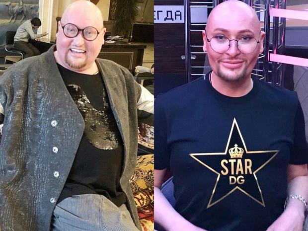 Шура до и после похудения.