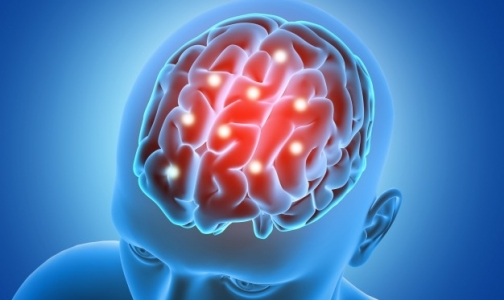 Фото №1 - Петербуржцам с болезнью Паркинсона имплантируют электроды в мозг