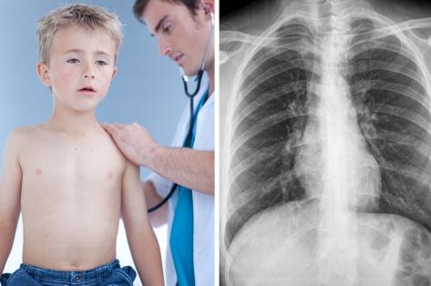 Бронхит у детей: симптомы и лечение