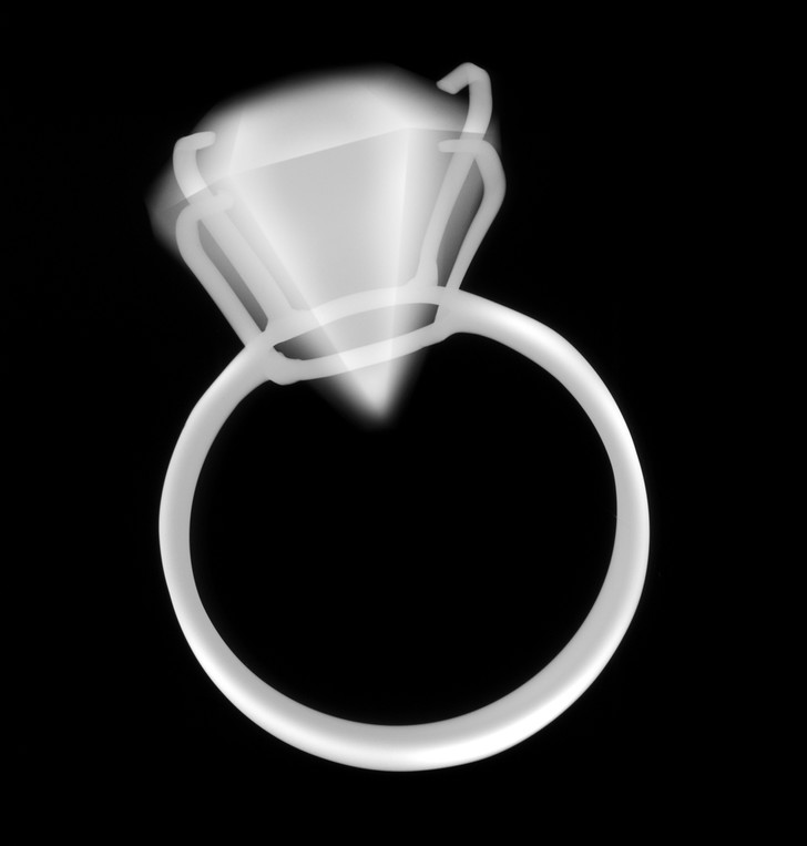 Nick Veasey / Getty Images