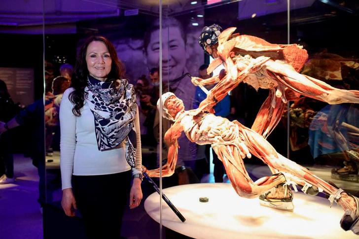 Фото №2 - В Москве состоялся специальный показ международной выставки BODY WORLDS