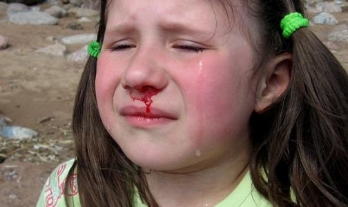 Фото №1 - Кровотечение из носа