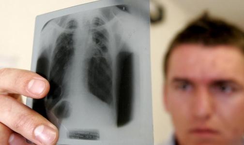 Фото №1 - Заболеваемость туберкулезом снизилась