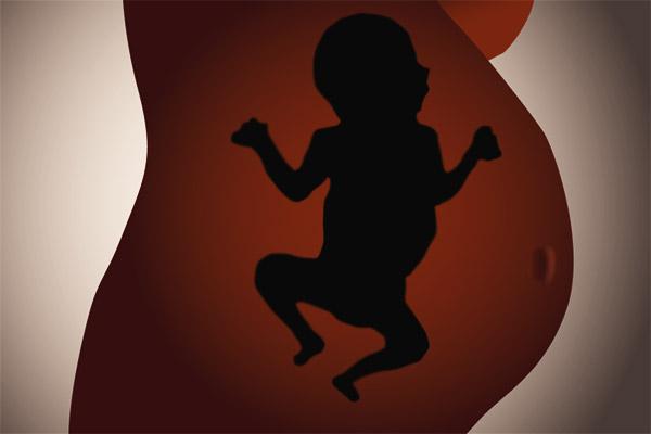 Фото №1 - Отдых от родов