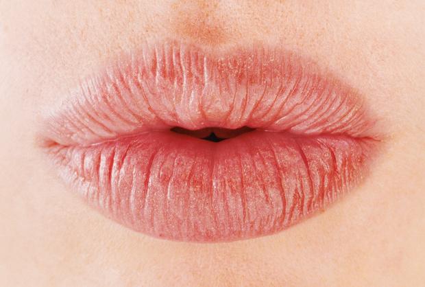 Фото №2 - Антивозрастная коррекция губ: кому, когда и какая нужна
