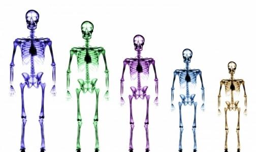 Фото №1 - У полных кости шире