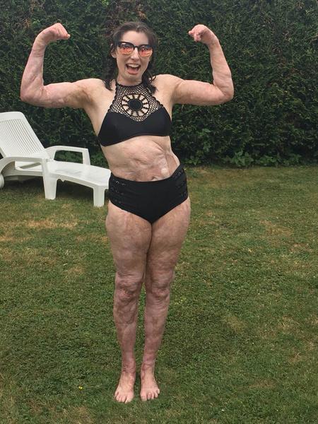 Фото №3 - Обгоревшая на пожаре девушка не стесняется своих шрамов и показывает тело в бикини