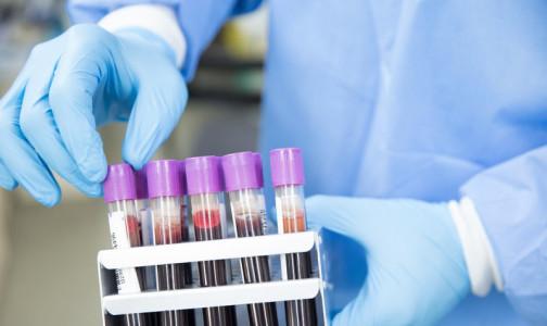 Фото №1 - Выпейте воды и успокойтесь: 8 правил подготовки к сдаче анализа крови