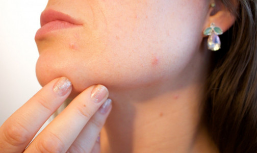 Фото №1 - Ковид на лицо: Дерматолог рассказал, как инфекция влияет на кожу