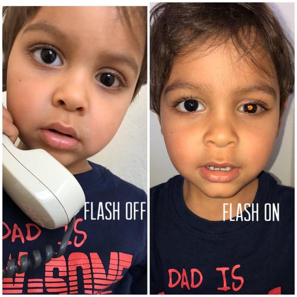 Фото, которое Кара сделала перед операцией— на нем ясно можно разглядеть опухоль.