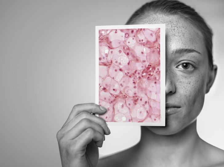 Фото №1 - Живой щит: как заставить бактерии работать на вашу кожу