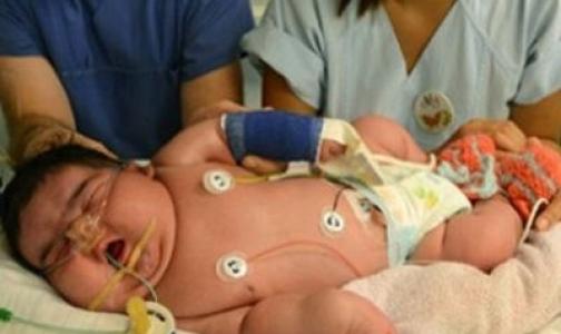 Фото №1 - Женщина смогла самостоятельно родить шестикилограммовую дочь