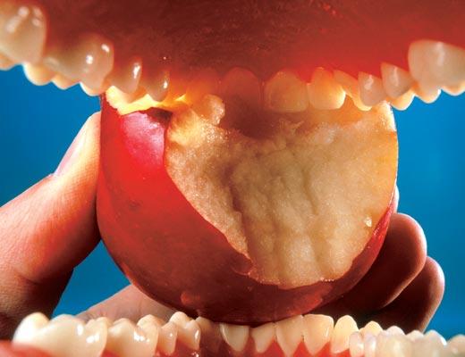 Фото №1 - Зубные катаклизмы