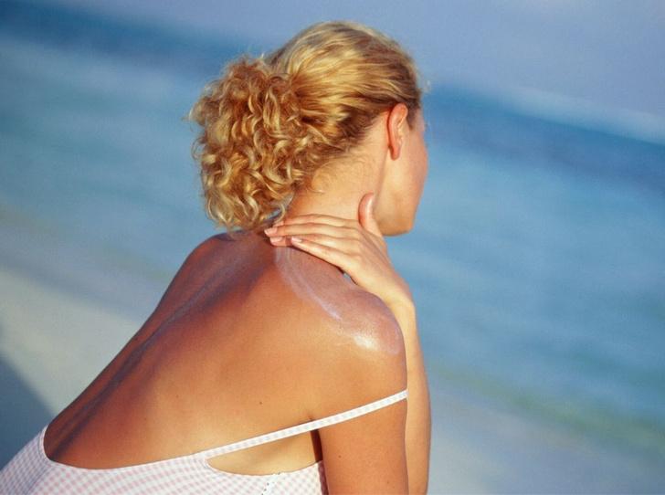 Фото №3 - Аллергия на солнце: что это такое, и как защитить кожу
