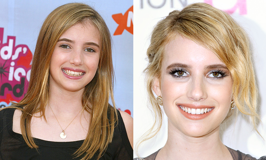 Голливудские звезды с винирами: фото до и после