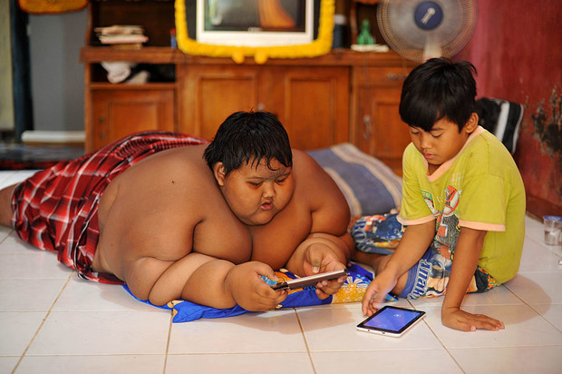 Арья Пермана, самый толстый мальчик в мире