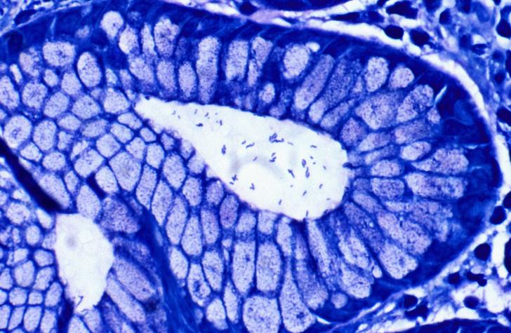 Фото №1 - Опасная бактерия удвоила устойчивость к антибиотикам