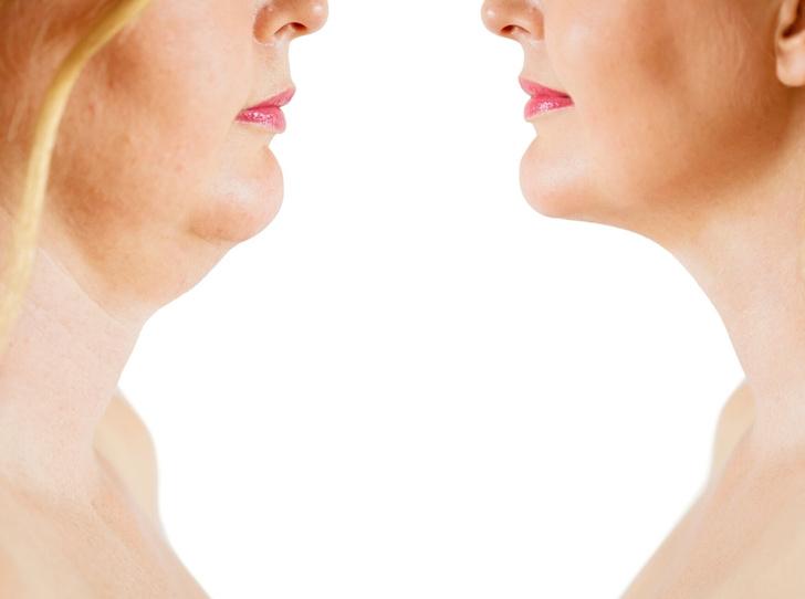 Фото №2 - Омоложение шеи: гид по самым эффективным операциям