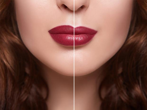 Фото №6 - Инъекции красоты: что нужно знать о филлерах