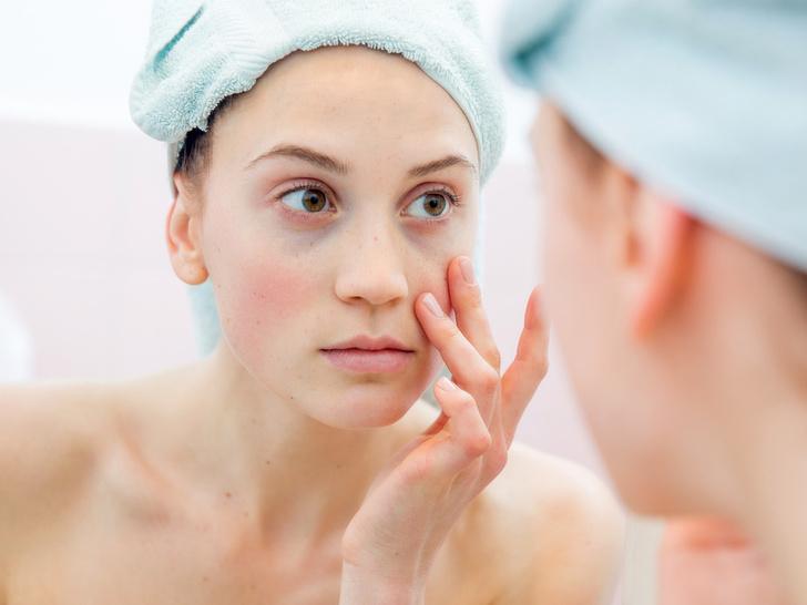 Фото №2 - 3 верных признака, что ваша кожа устала от косметики (и что с этим делать)